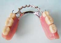 also femvázas kivetö fogsor